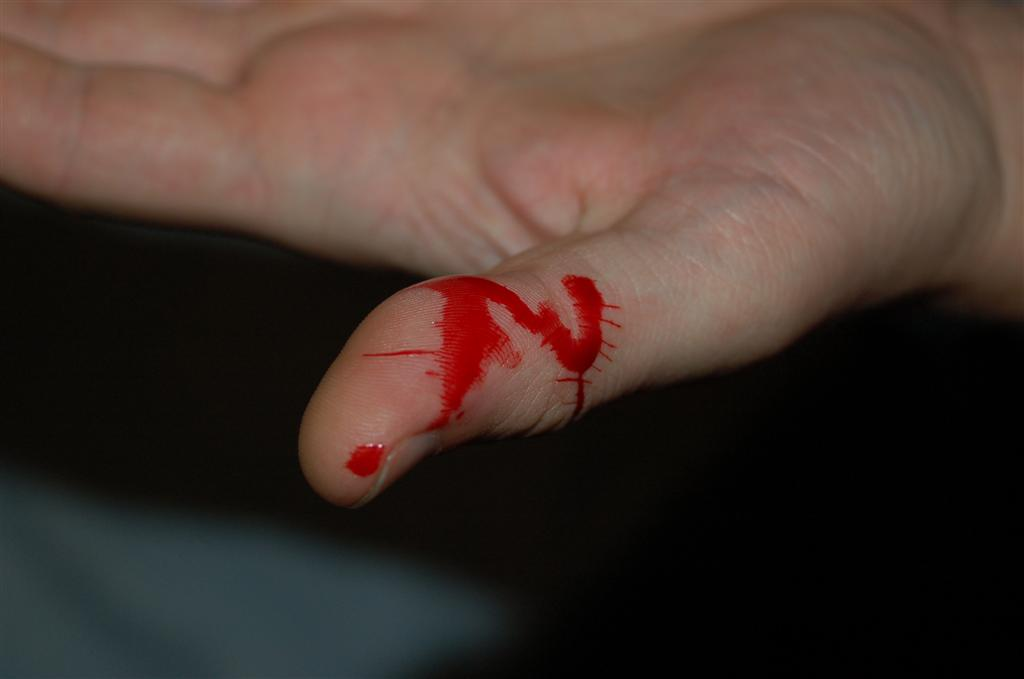 Boa bite (with blood pictures!) - Reptile Forums